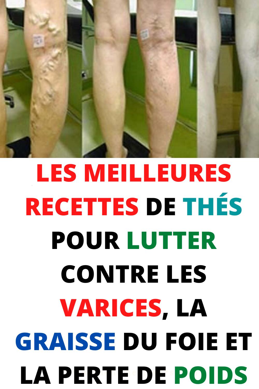 Comment éliminer les varices sur les jambes ?