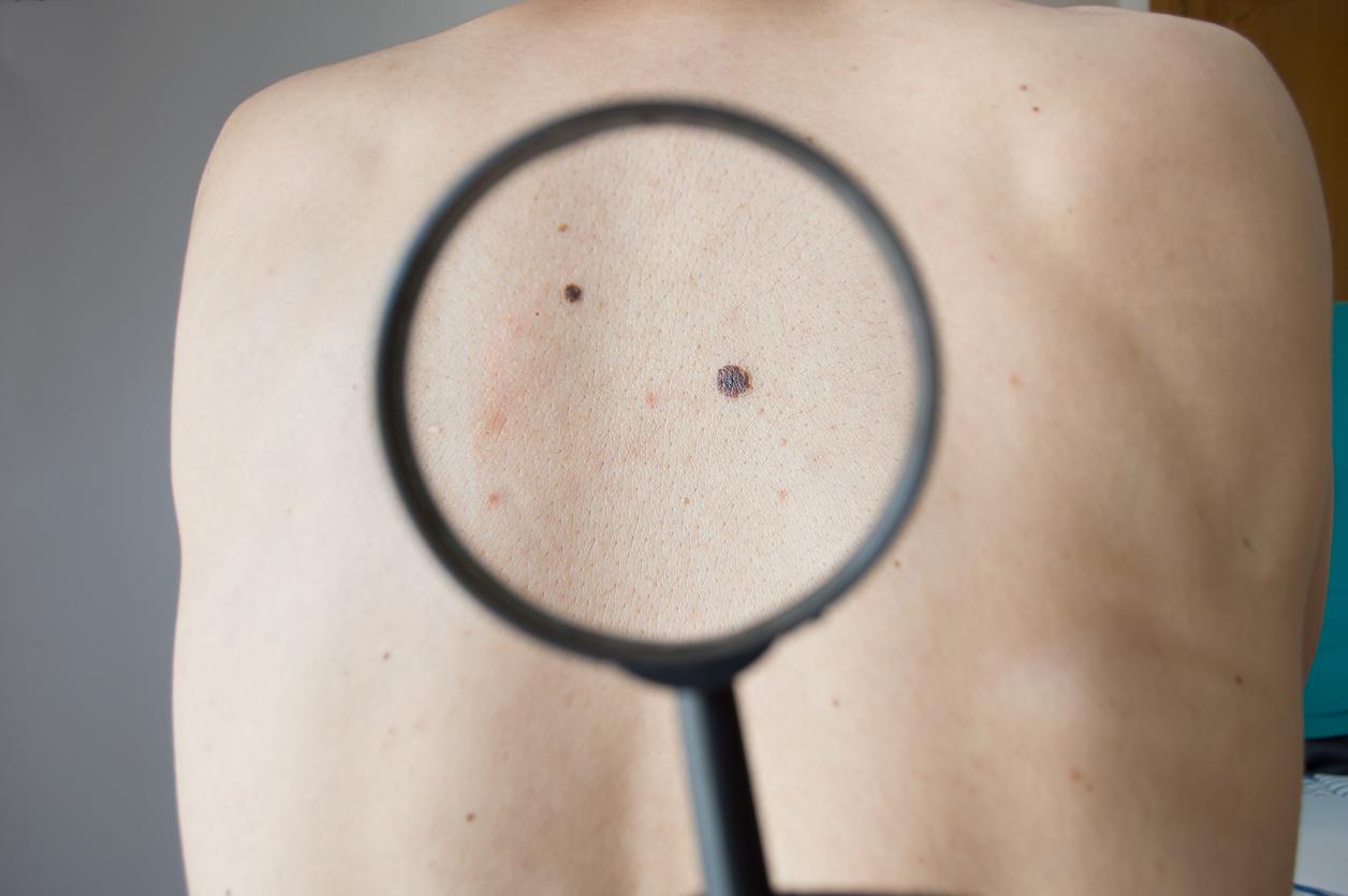 le mélanome peut-il entraîner une perte de poids perte de graisse fraxel