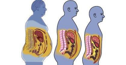 7 huiles essentielles qui vous aident à maigrir | Santé Magazine