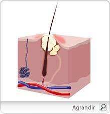 Acné : causes et traitements de l'acné