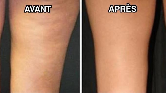 Identifier son type de cellulite pour mieux l'atténuer
