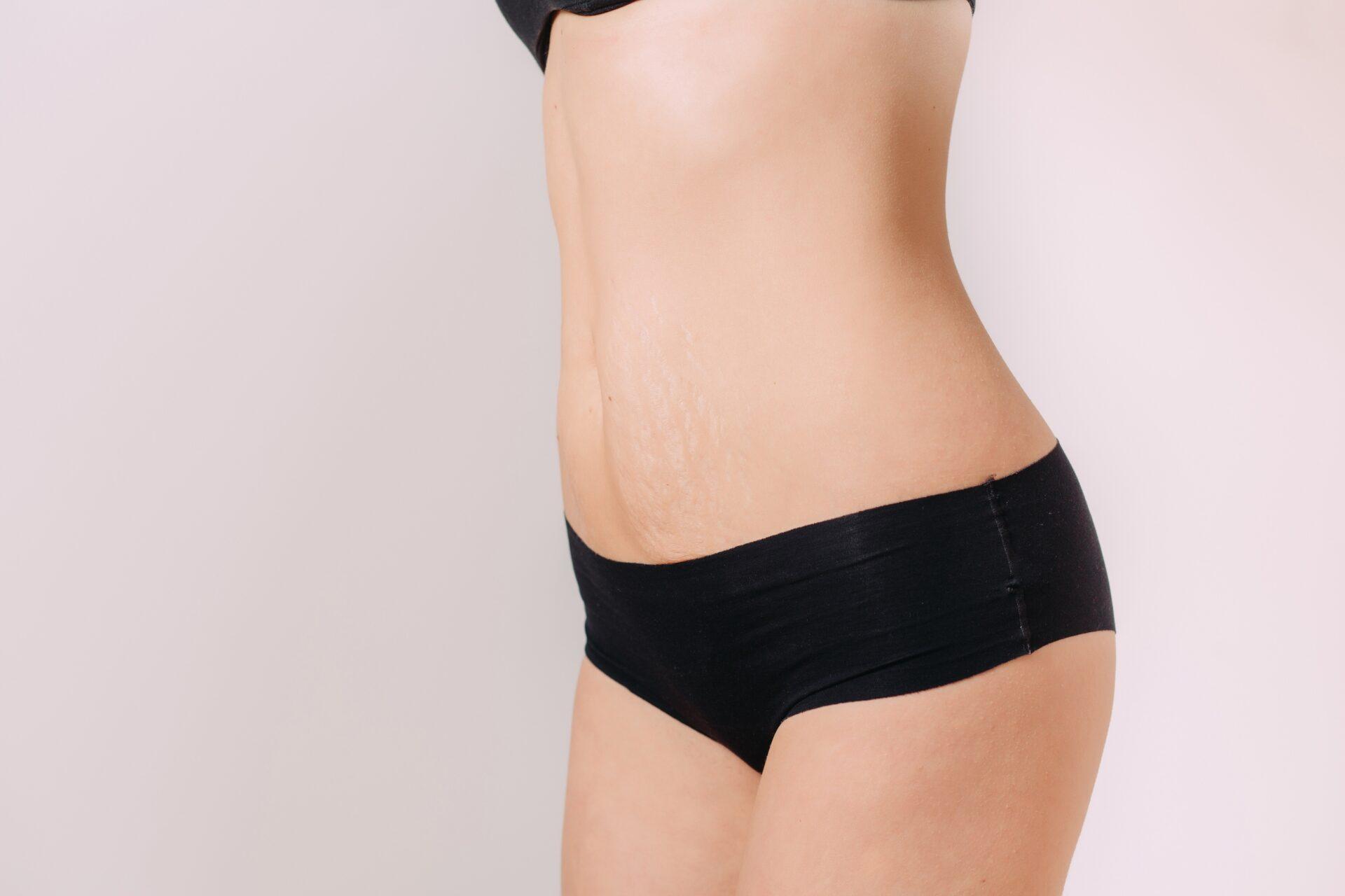 pouvez-vous perdre du poids après les vergetures