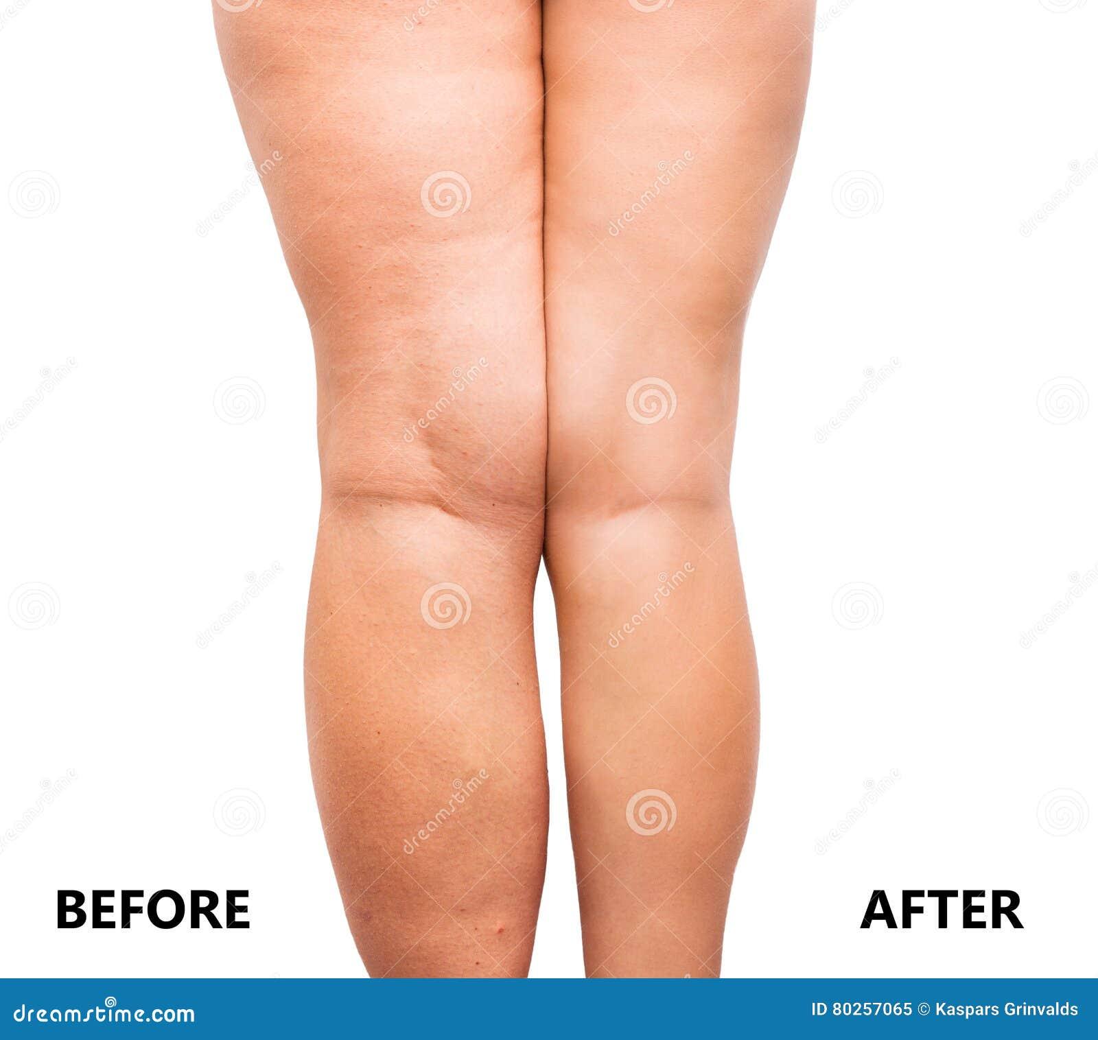 perte de graisse dans les jambes avant et après