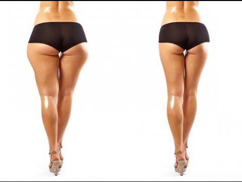 comment enlever la graisse des hanches rapidement