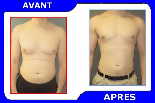 comment perdre la graisse du sein rapidement naturellement perte de poids vyvanse