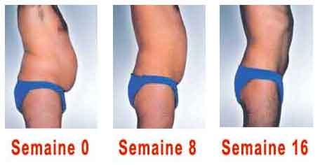 comment perdre la graisse des hanches homme Beverly Hills perte de poids milton