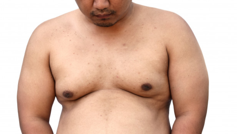 Comment maigrir de la poitrine ?