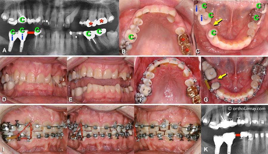 10 choses à savoir sur l'orthodontie pour adultes | Santé Magazine