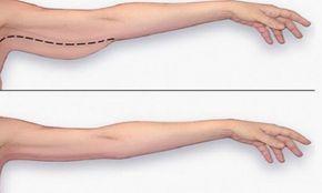 Comment maigrir des bras, les affiner et les sculpter ? - L'Équipe
