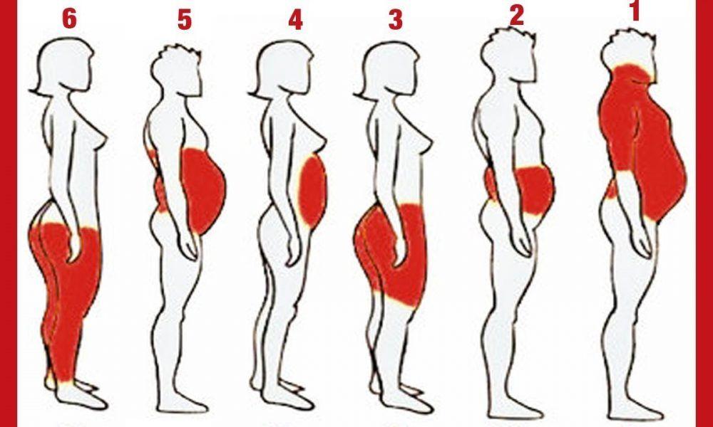 Obésité : pourquoi prend-on du poids ?