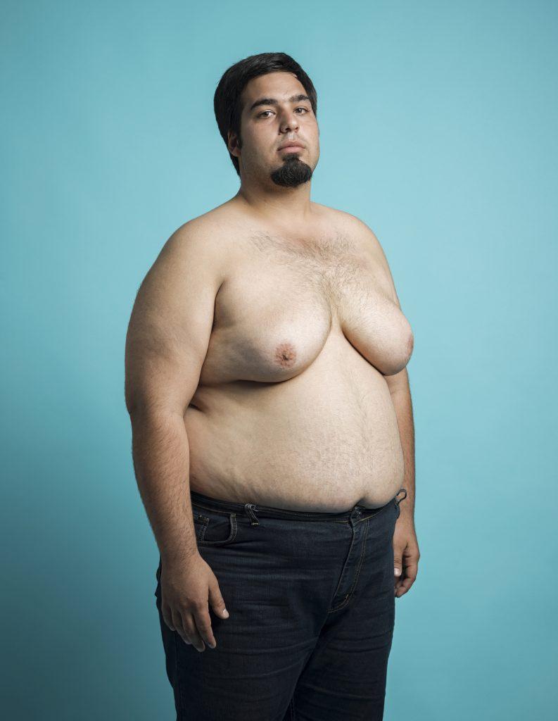 comment un homme perd-il la graisse du sein