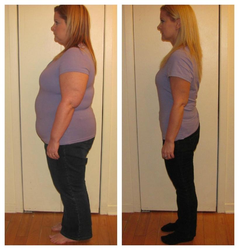 vie après la perte de poids upmc