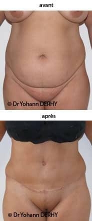 perdre la graisse du ventre abdominoplastie