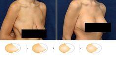 7 conseils pour raffermir la peau flasque - Améliore ta Santé