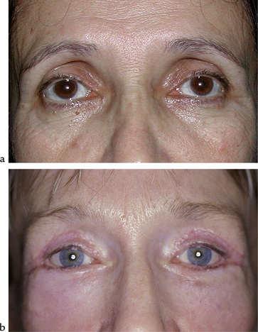 perte de graisse oculaire orbitaire