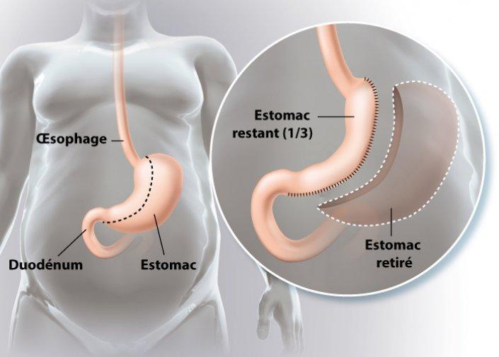 La perte de poids réduit les reflux gastriques