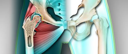 Les douleurs de la hanche