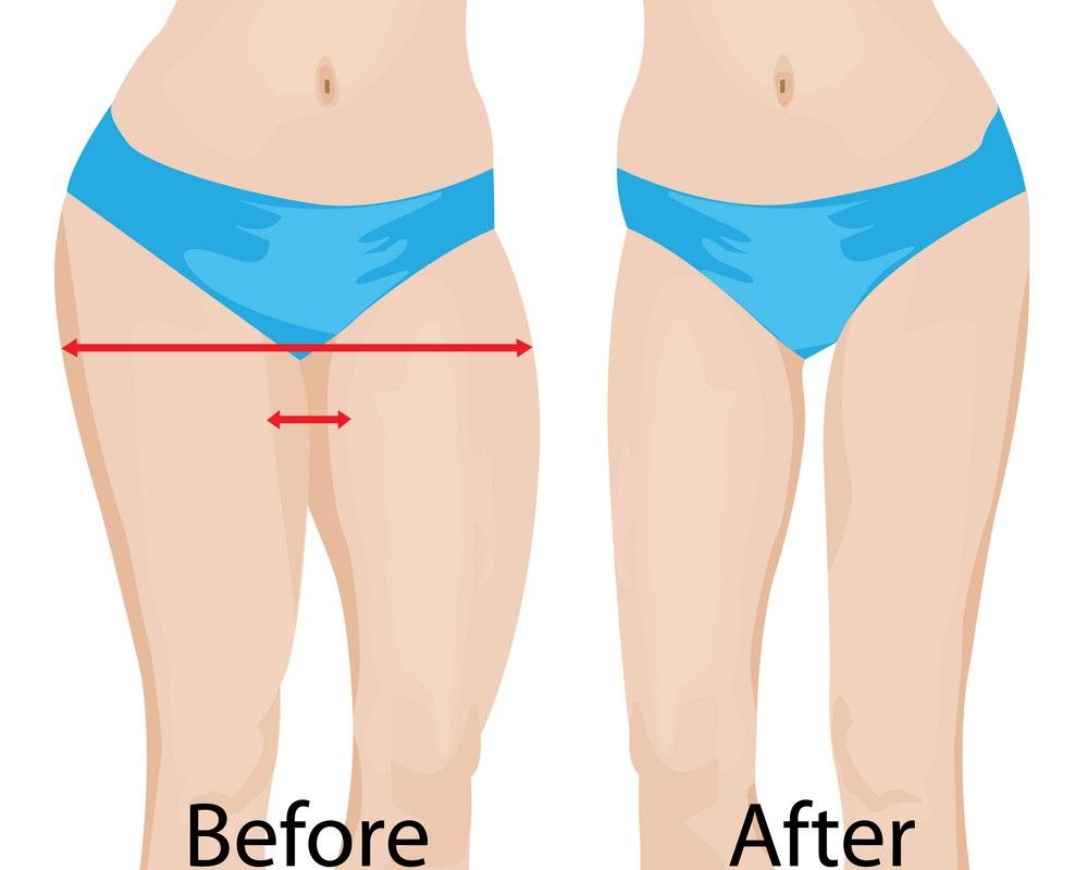 transformation de la perte de poids en 3 mois homme