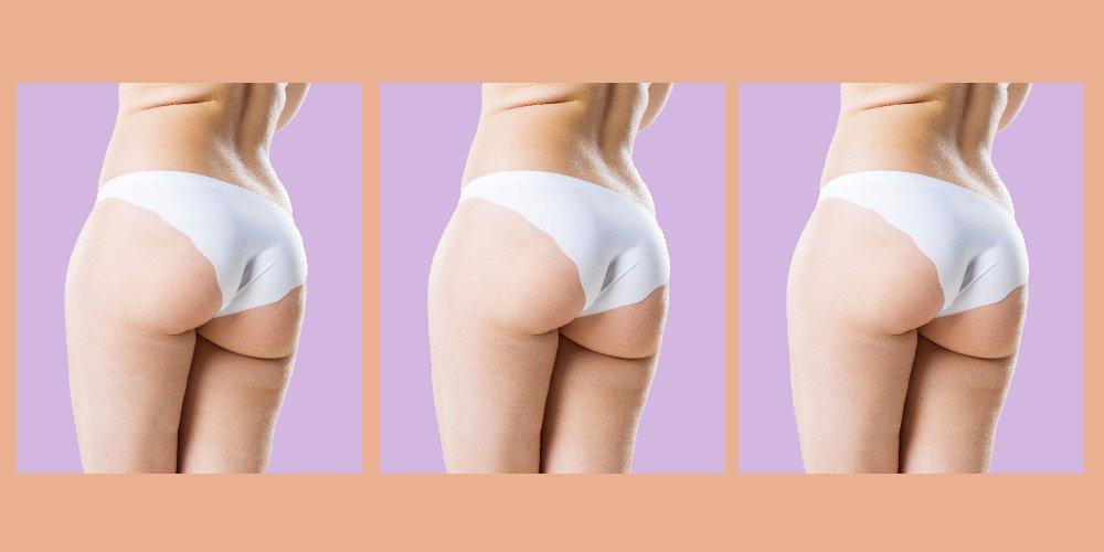 Minceur : 12 conseils pour maigrir des fesses - Top Santé