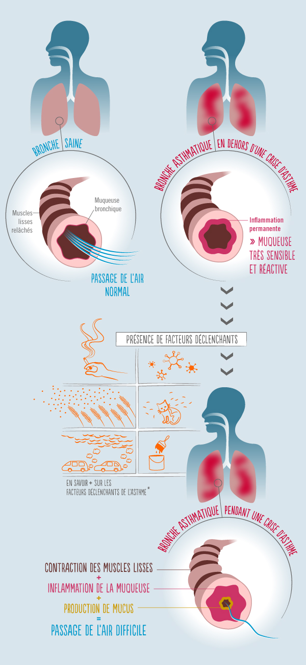 perte de poids de médicaments contre lasthme