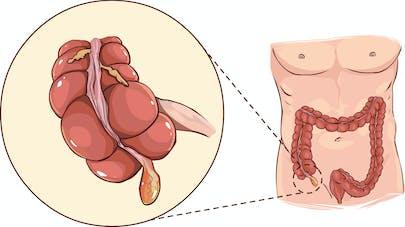 la perte de poids provoque une appendicite