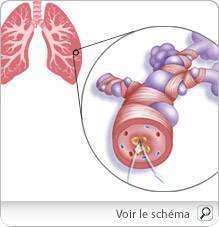 Asthme : Traitements de l'asthme (médicaments, homéopathie)