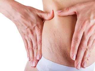 les vergetures accompagnent-elles la perte de poids brûler les suppléments rapides de graisse du ventre