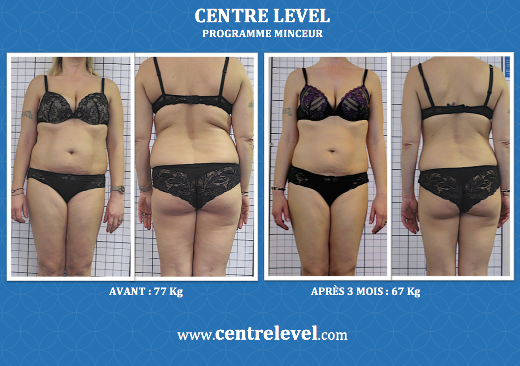 modifications des vêtements de perte de poids caca est un moyen de perdre du poids