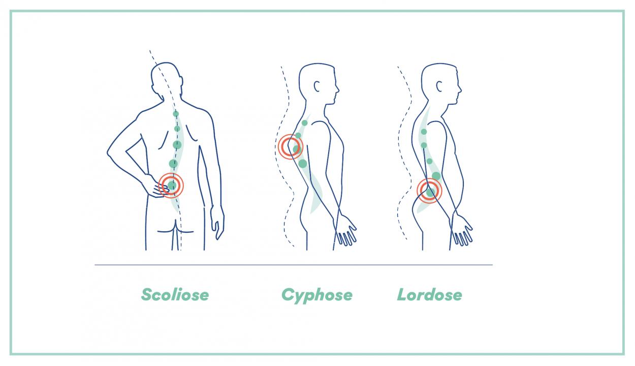 Hyperlaxité - Symptômes, Risques et Traitements