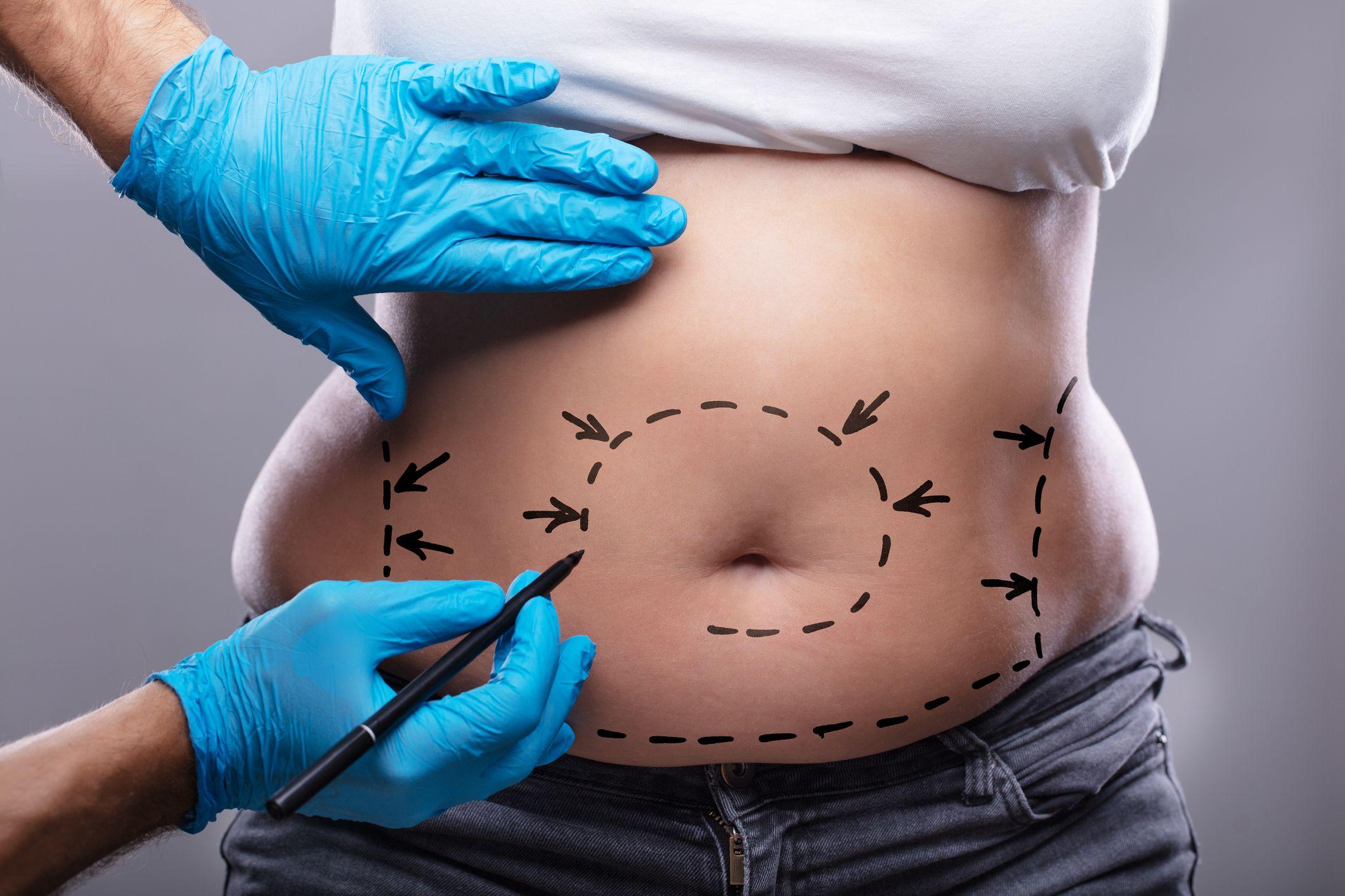 perte de poids dr en okc perdre du poids la graisse du ventre