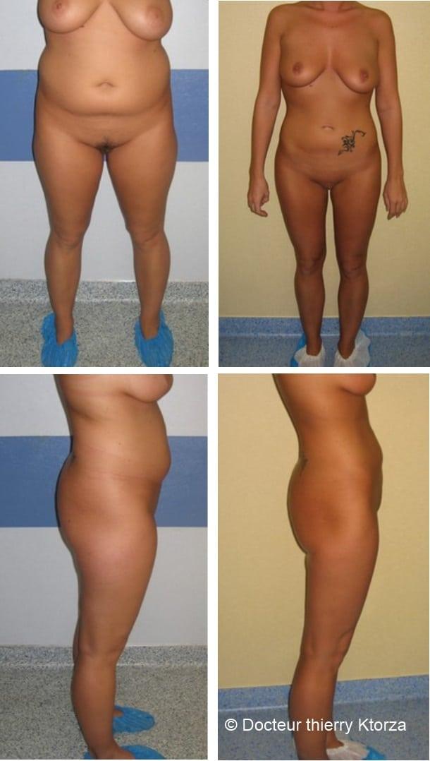 Comment se déroule le postopératoire d'un Brazilian Butt Lift | Bog Santé