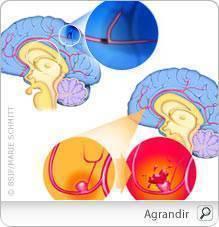 tumeur cérébrale de perte de poids