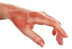 brûlure de graisse sur les bras